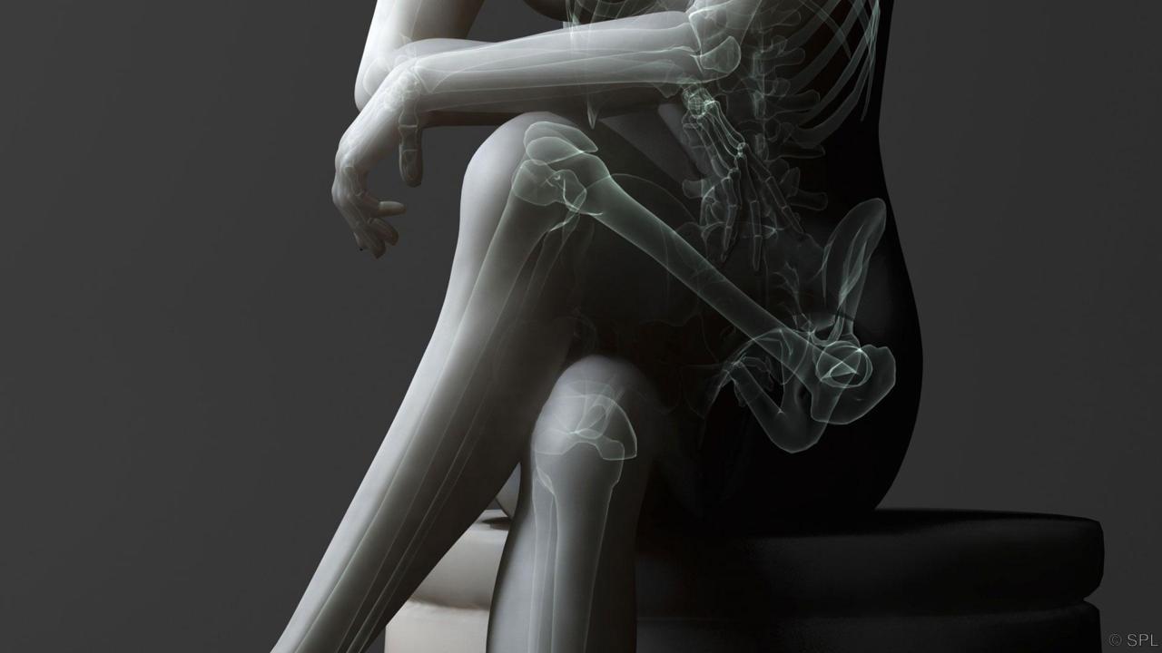 Prekladanie nôh - problémy