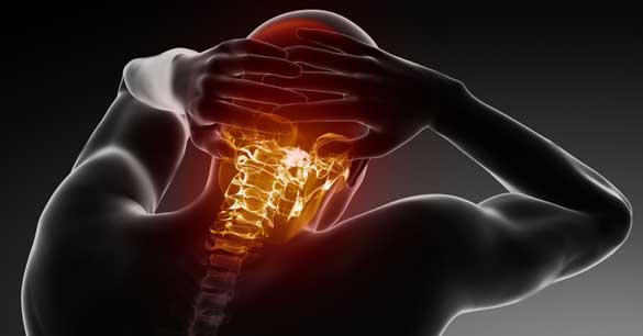 krčná chrbtica príznaky