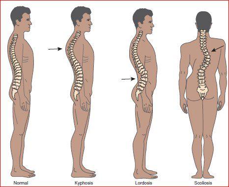 Zakrivenia chrbtice - lordóza, kyfóza