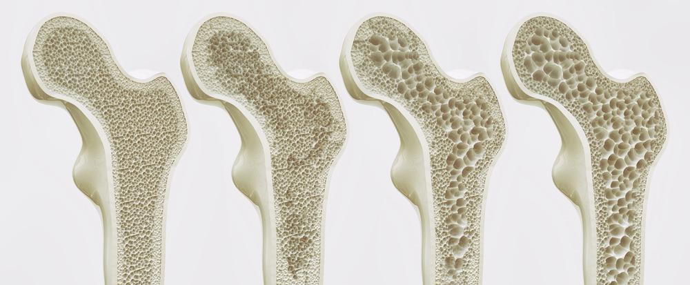 Osteoporóza: príčiny, cvičenie, liečba - rehabilitácia Bratislava