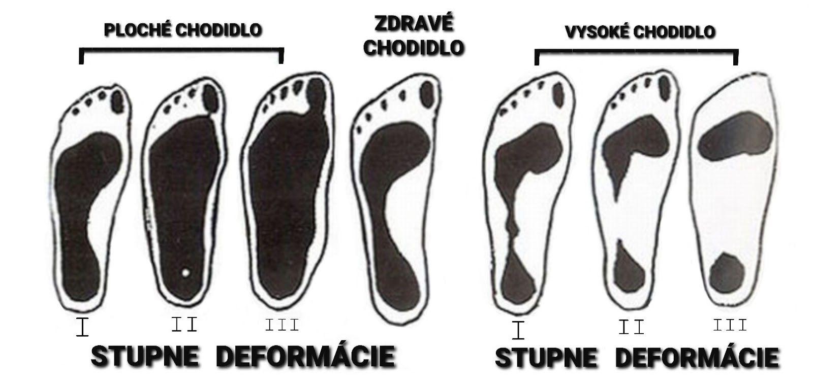 ploska-nohy