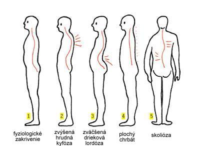 Správne držanie tela proti bolesti chrbta